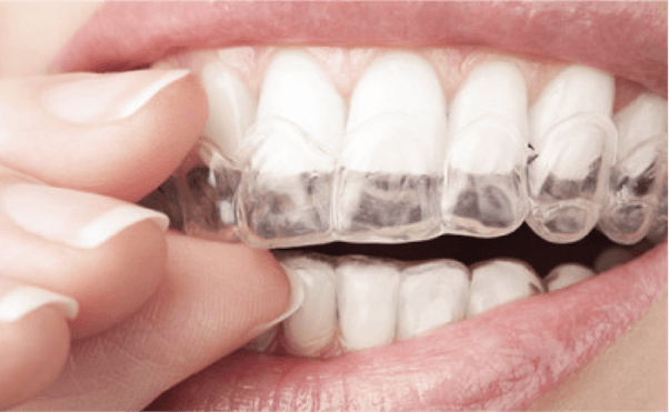 Invisible braces cost in Chennai