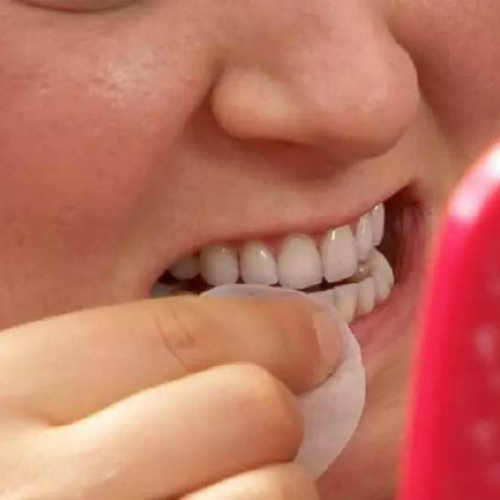 black stain marks on the teeth