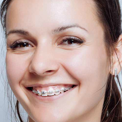 Embracing Your Braces - Know the Facts