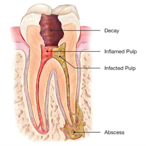 When do we need a Root canal treatment