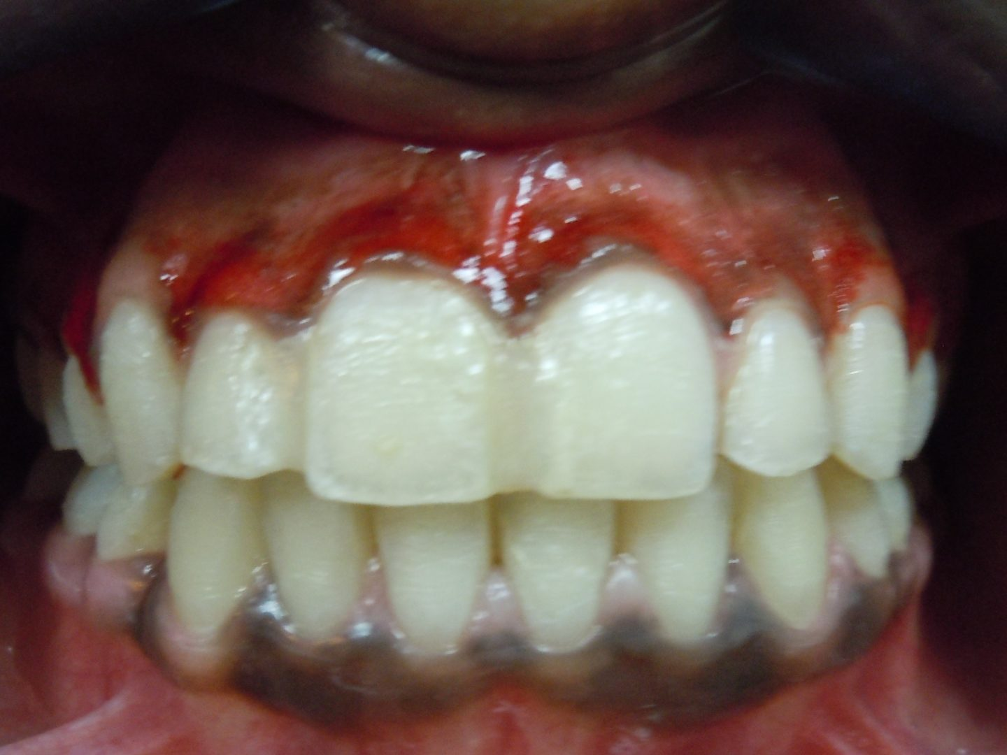Post Op - Dr-Smilez Dental Center - Chennai