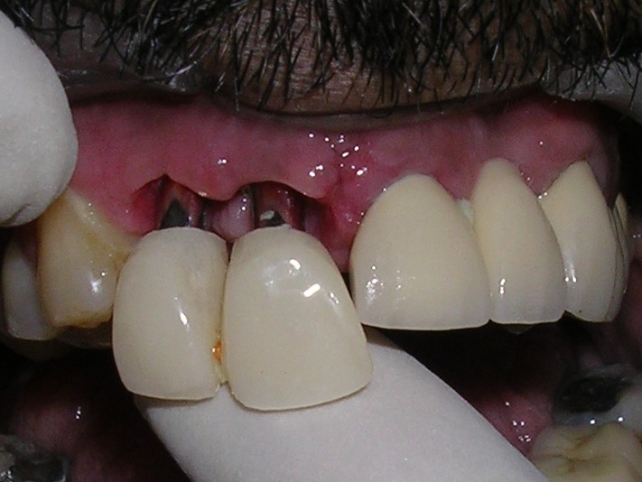Multiple Implants - Dr-Smilez Dental Center - Chennai