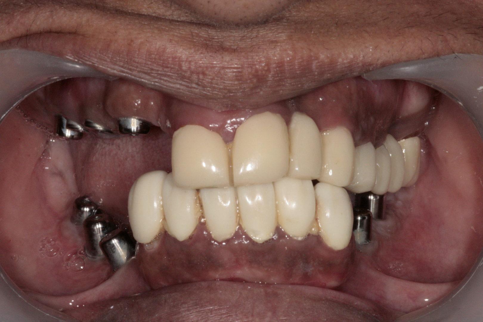 Implants Bridge - Dr-Smilez Dental Center - Chennai