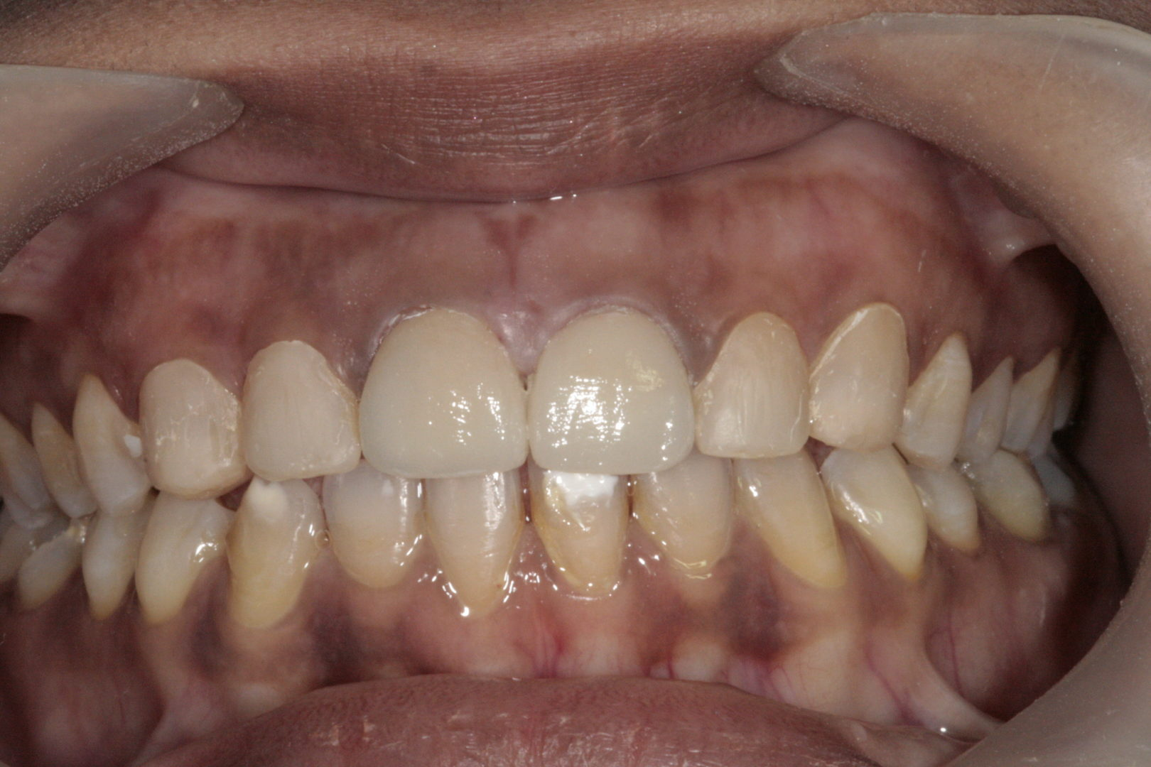 Tooth Replacement - Crowns - Dr-Smilez Dental Center - Chennai