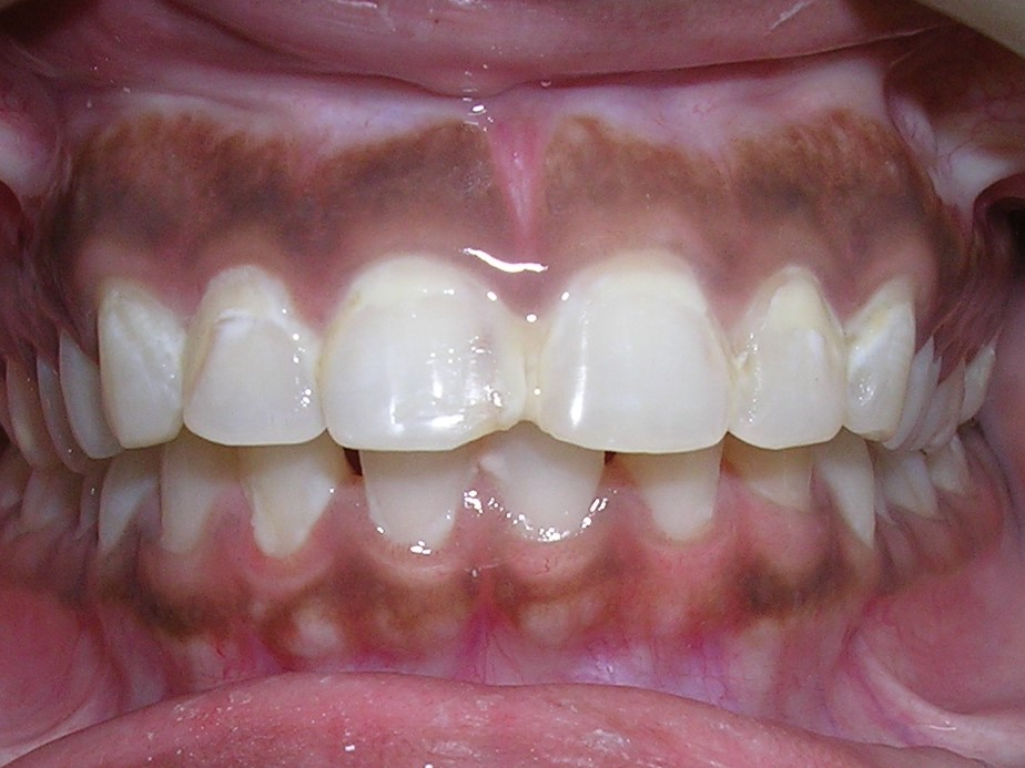 Porcelain Veneer - Dr-Smilez Dental Center - Chennai
