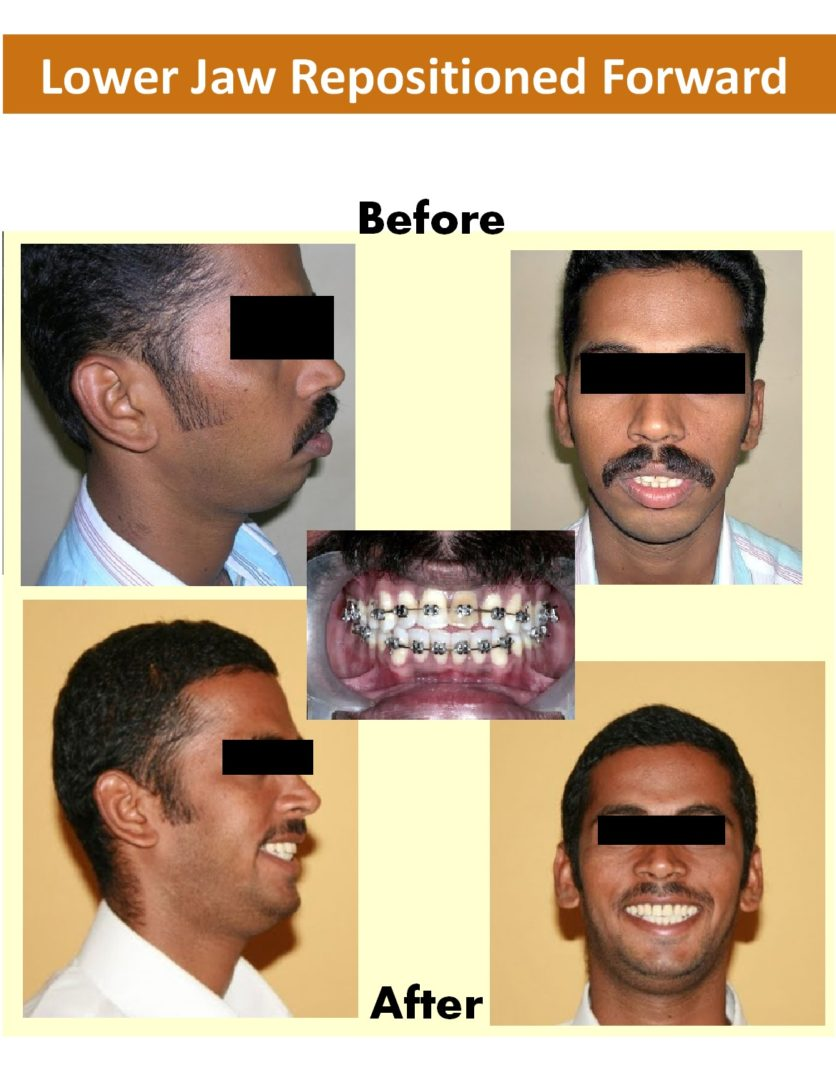 Surgical Ortho - Dr-Smilez Dental Center - Chennai