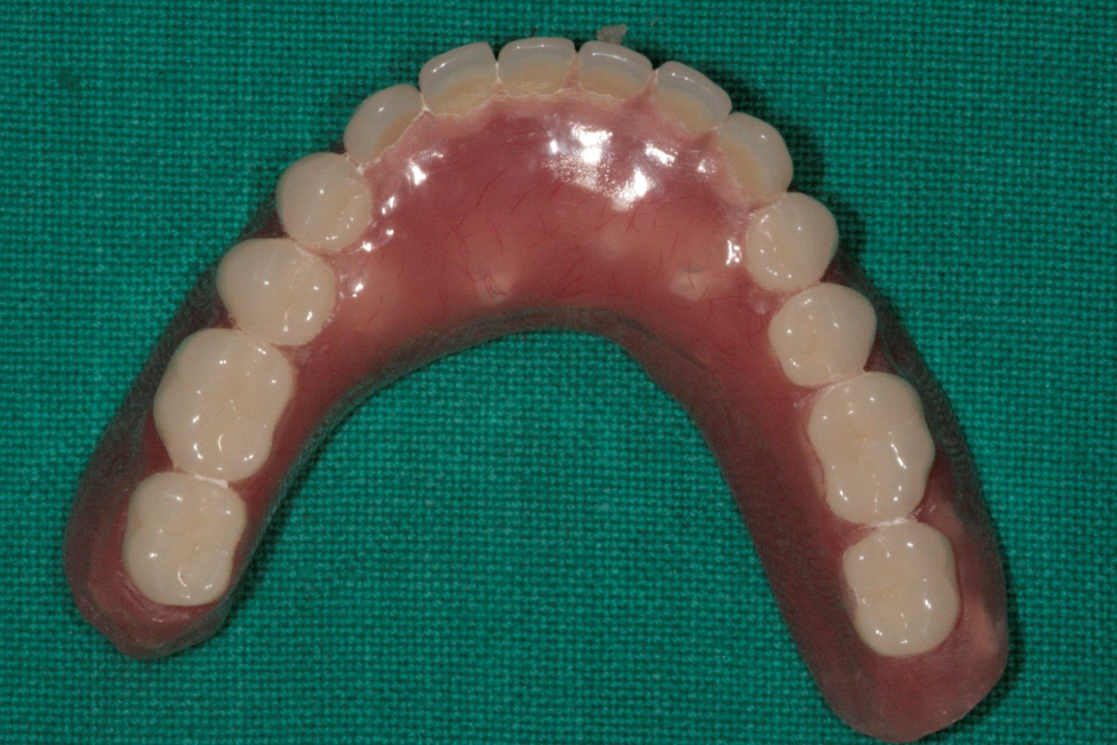 Implants Supported Denture - Dr-Smilez Dental Center - Chennai
