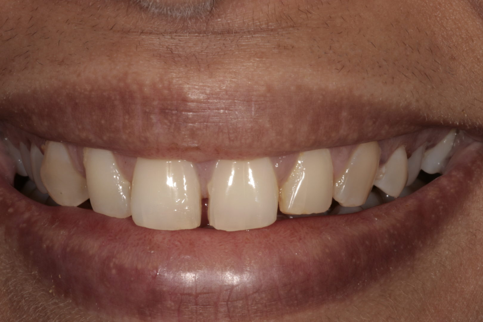 Composite Veneers - Dr-Smilez Dental Center - Chennai