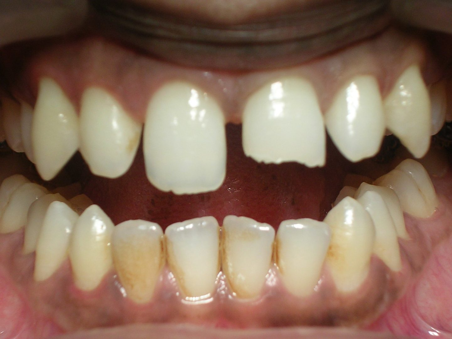 Composite Veneers - Dr Smilez Dental Center - Chennai