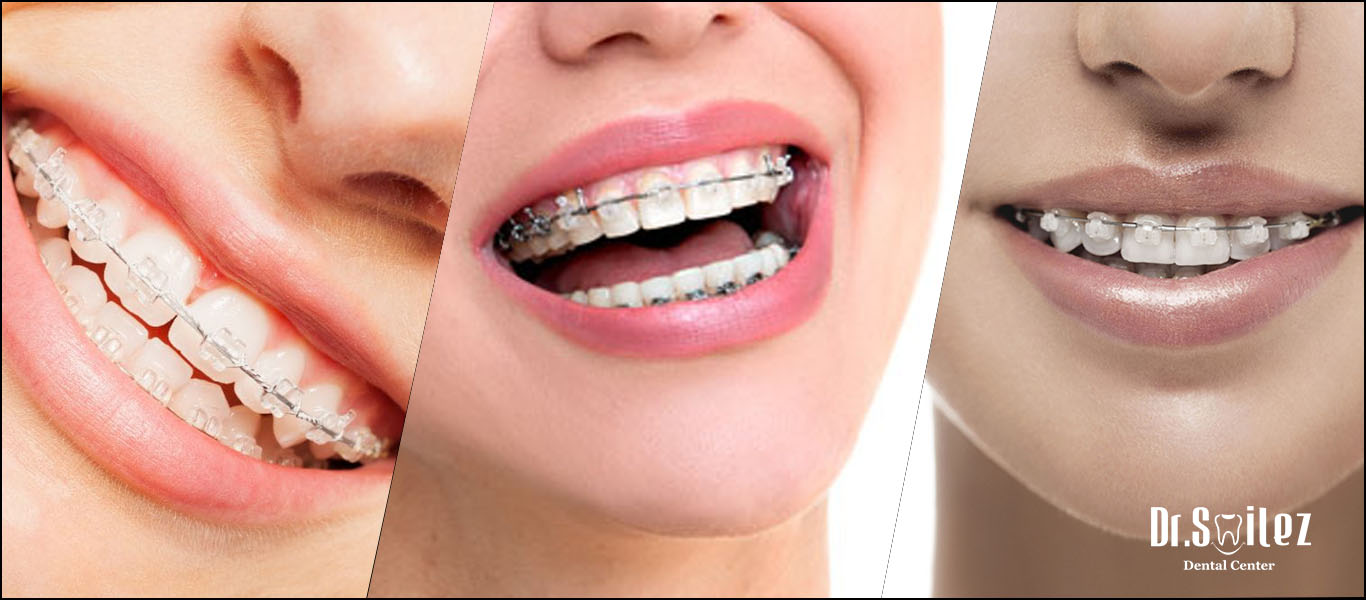 Ceramic braces cost in Chennai, India