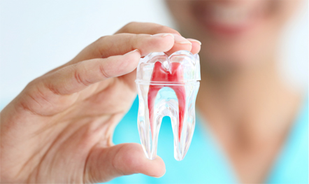 How to avoid root canal naturally