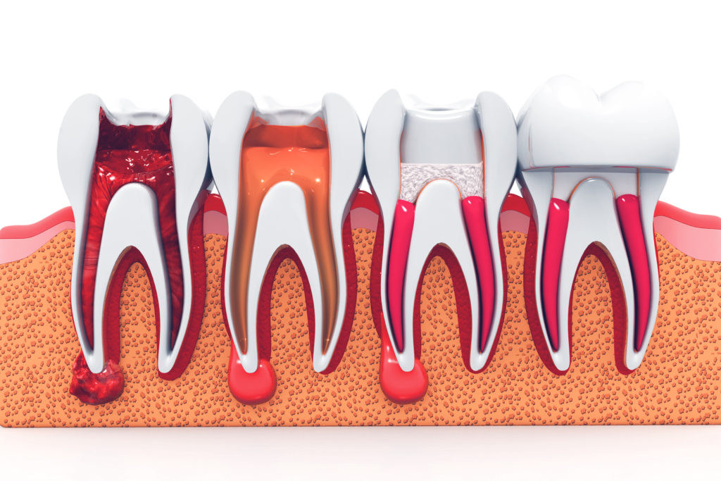 Root Canal Treatment Benefits